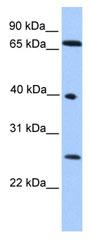 Western blot - L3MBTL2 antibody (ab80489)