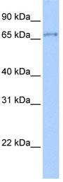Western blot - ZNF76 antibody (ab80505)