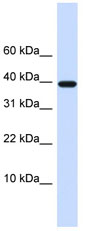 Western blot - LECT1 antibody (ab80511)