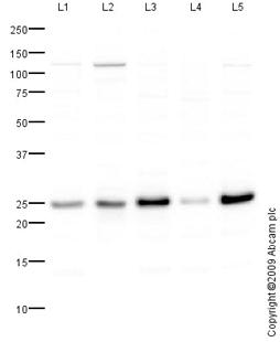 Western blot - MGMT antibody (ab80513)