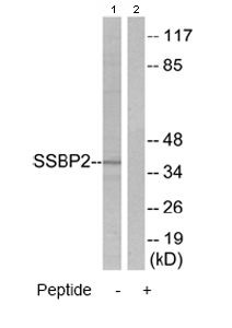 Western blot - SSBP2 antibody (ab80515)