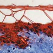 Immunohistochemistry (Formalin/PFA-fixed paraffin-embedded sections) - Cytokeratin 10 antibody [DE-K10] - BSA and Azide free (ab80523)