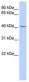 Western blot - Glycerol 3 Phosphate Dehydrogenase antibody (ab80535)
