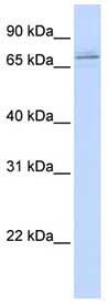 Western blot - MAK antibody (ab80536)