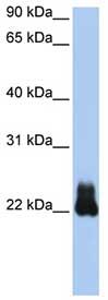 Western blot - RHOD antibody (ab80537)
