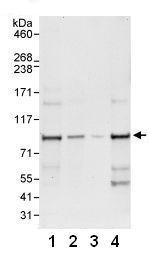 Western blot - WDR91 antibody (ab80614)