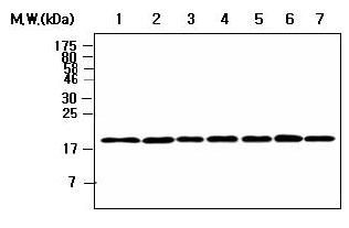Western blot - Ferritin Light Chain antibody [AF7B7] (ab80617)