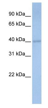 Western blot - DPS1 antibody (ab80647)