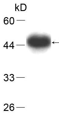 Western blot - Anti-PGP9.5 [35] antibody (ab80664)