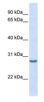 Western blot - TSPAN6 antibody (ab80670)