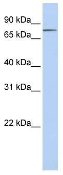 Western blot - Integrin beta 8 antibody (ab80673)