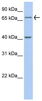 Western blot - GALNT4 antibody (ab80676)