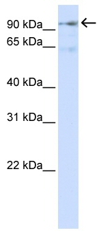Western blot - HURP antibody (ab80684)
