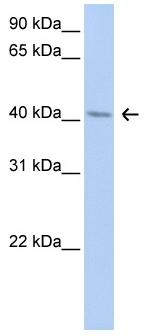 Western blot - ERLIN1 antibody (ab80685)