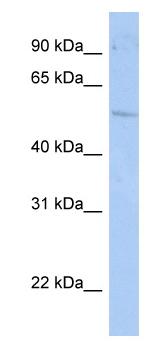 Western blot - Anti-ROR gamma antibody (ab80690)