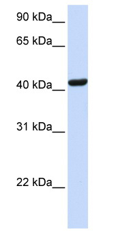 Western blot - SKAP55 antibody (ab80692)