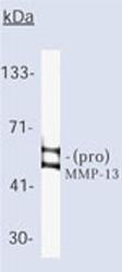 Western blot - MMP13 antibody [LIPCO IID1] - BSA and Azide free (ab80734)