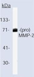 Western blot - MMP2 antibody [VB3] - BSA and Azide free (ab80738)