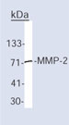 Immunoprecipitation - MMP2 antibody [VB3] - BSA and Azide free (ab80738)