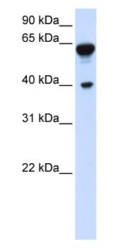 Western blot - Dystrobrevin beta antibody (ab80812)