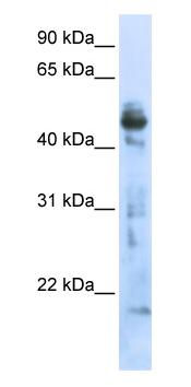 Western blot - OXSM antibody (ab80813)