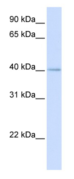 Western blot - MRPL39 antibody (ab80814)