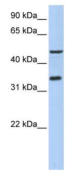 Western blot - PIP3E antibody (ab80817)