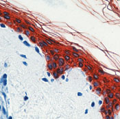 Immunohistochemistry (Formalin/PFA-fixed paraffin-embedded sections) - pan Cytokeratin antibody [AE1/AE3] - BSA and Azide free (ab80826)