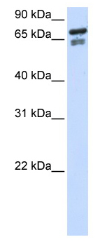 Western blot - Transcription factor 25 antibody (ab80843)