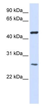 Western blot - TMEM127 antibody (ab80846)