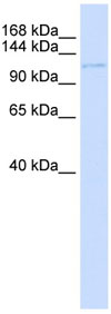 Western blot - UBN1 antibody (ab80849)