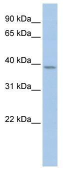 Western blot - Cyclin Y antibody (ab80853)