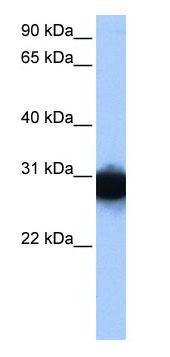 Western blot - Triosephosphate isomerase antibody (ab80854)