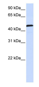 Western blot - UMPS antibody (ab80857)