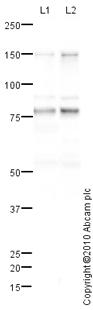 Western blot - EFHC1 antibody (ab80861)