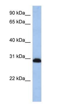 Western blot - PSMD8 antibody (ab80866)