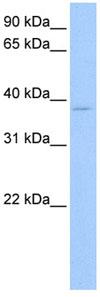 Western blot - RPL3 antibody (ab80870)