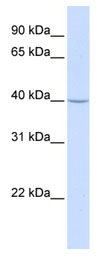 Western blot - TRAM2 antibody (ab80871)