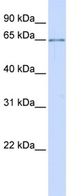 Western blot - ALG6 antibody (ab80873)