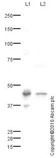 Western blot - Tomoregulin-1 precursor antibody (ab80878)