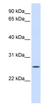 Western blot - UNC50 antibody (ab80884)