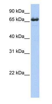 Western blot - ZDHHC17 antibody (ab80886)