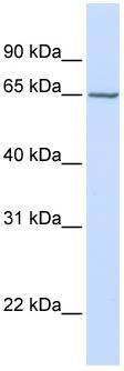 Western blot - ST4S6 antibody (ab80887)