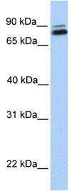 Western blot - GGT7 antibody (ab80903)