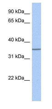 Western blot - GLT6D1 antibody (ab80904)