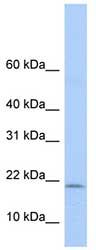 Western blot - POLR1D antibody (ab80936)