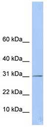 Western blot - ECHDC1 antibody (ab80938)