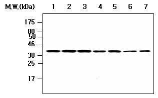 Western blot - Protein Phosphatase 1 beta antibody [AF9B12] (ab80942)