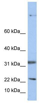 Western blot - SEP15 antibody (ab80985)