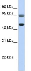 Western blot - FAM113A antibody (ab81028)